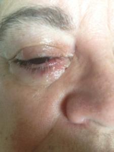 eye following surgery...