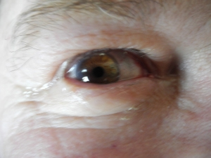 George's eye following cataract surgery...